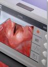 videolaryngoscoop